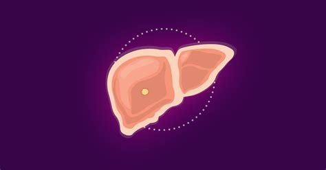 Signs and Symptoms of Liver Cancer [Infographic] | Dana