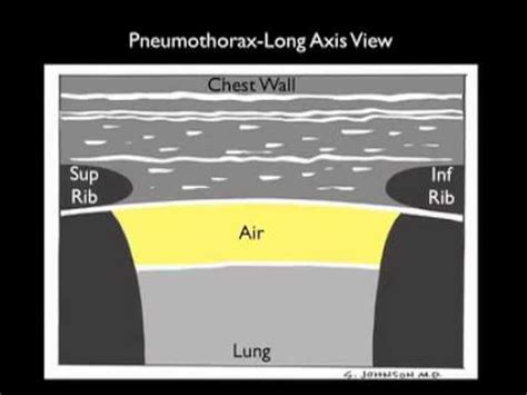 How to: Ultrasound for Pneumothorax Case Study - YouTube