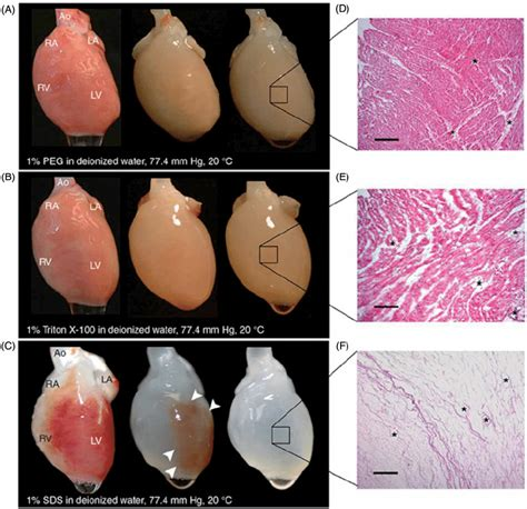 Hearts beating through decellularized scaffolds: whole