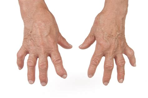 Rheumatoid Arthritis Found To Be More Severe With Co