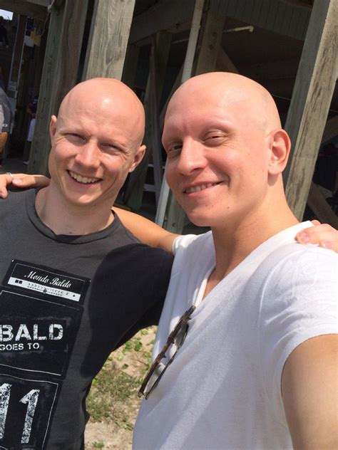 """Anthony Carrigan on Twitter: """"Me and my #alopecian #"""